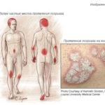 Часты места появления псориаза (схема)
