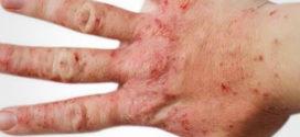 Как принимать Полисорб при атопическом дерматите