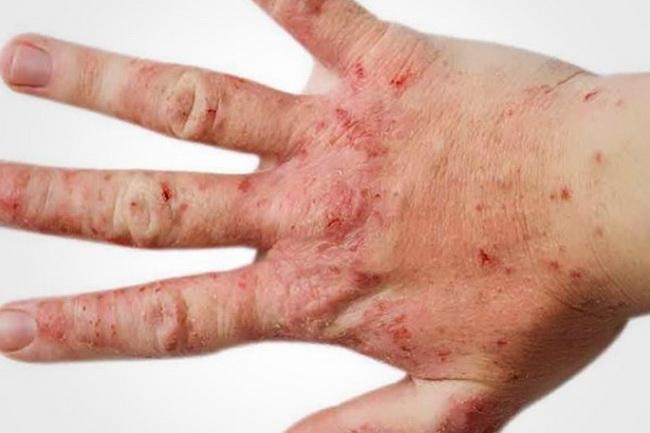 Проявления атопического дерматита на руке